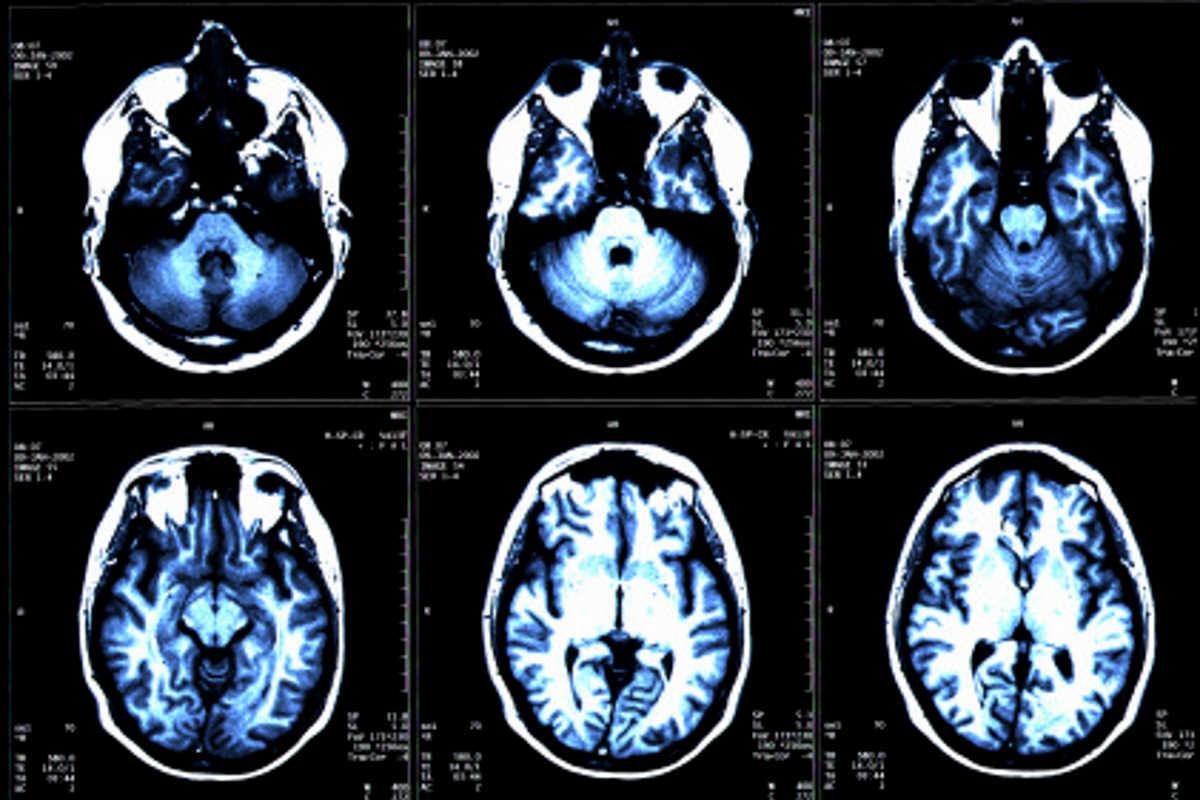 Quali sono i sintomi e segni della sclerosi multipla