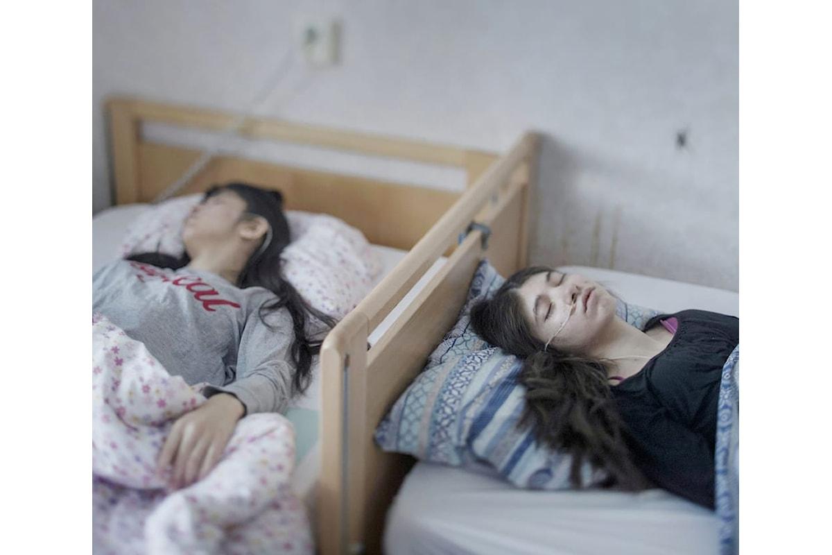 Eramo: è una sindrome alquanto strana, colpisce principalmente i bambini ed i ragazzi stranieri