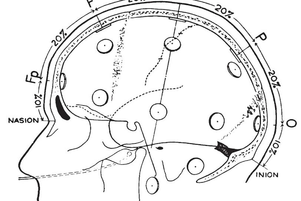 Come funzione e cos'è l'ElettroEncefaloGrafo