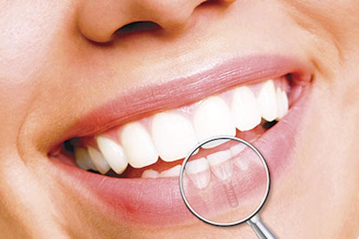Torna a sorridere con l'implantologia dentale
